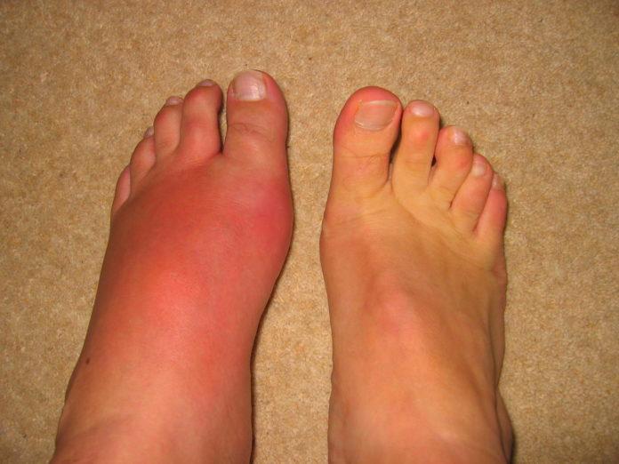 Распух палец на ноге из за диабета